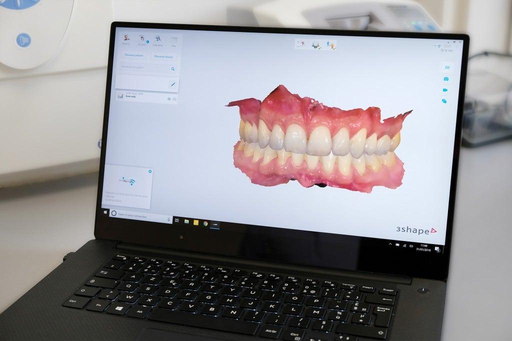 Dentiste-Toulon_Le-TiecI